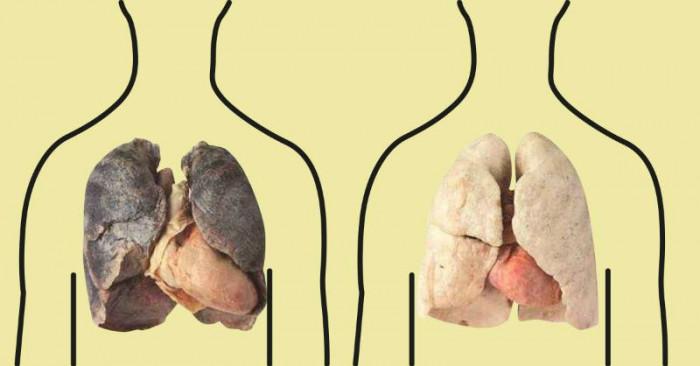 Past.am | Հատուկ ծխողների համար. 4 մթերք, որոնք մաքրում են թոքերը  (տեսանյութ)